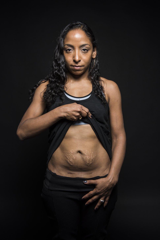 photo-femme-cicatrice-cesarienne-1