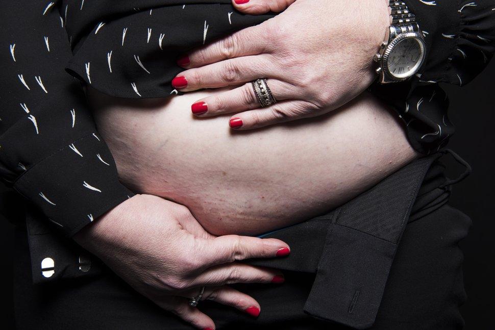photo-femme-cicatrice-cesarienne-2