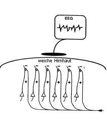 EEG Beschreibung des Verfahrens