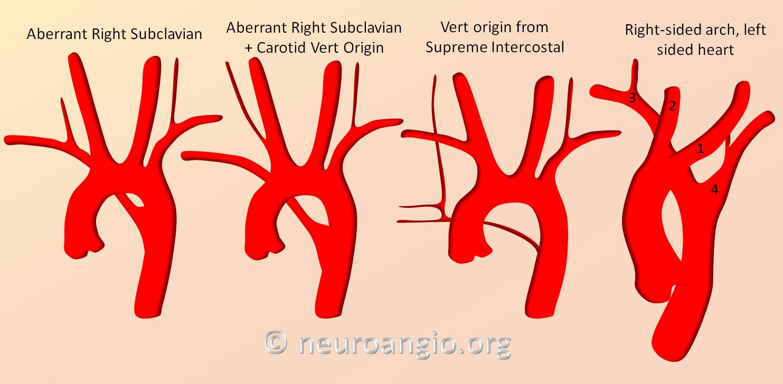 Aortic Arch   neuroangio.org