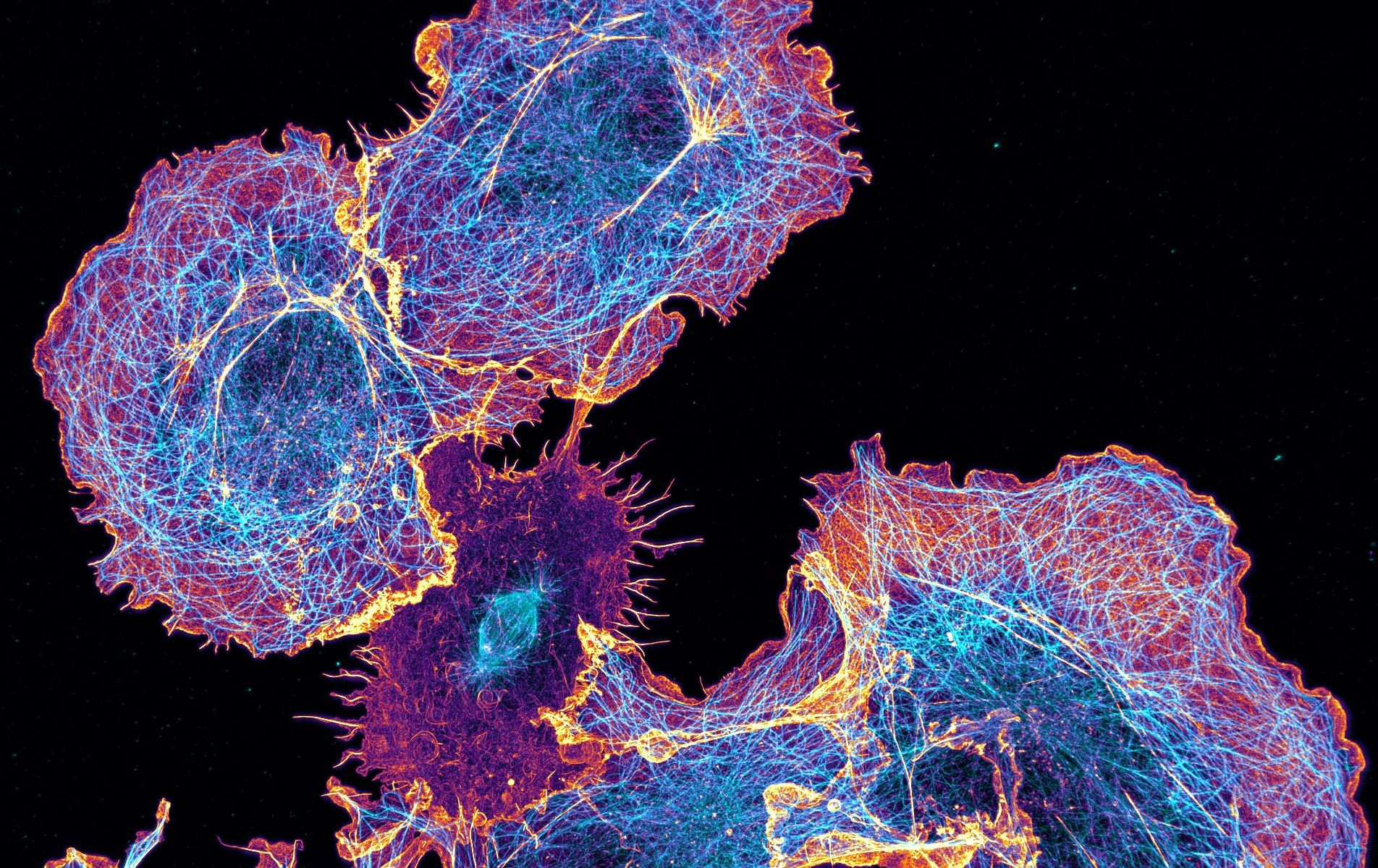 COS cells labeled for actin (orange) and microtubules (cyan)