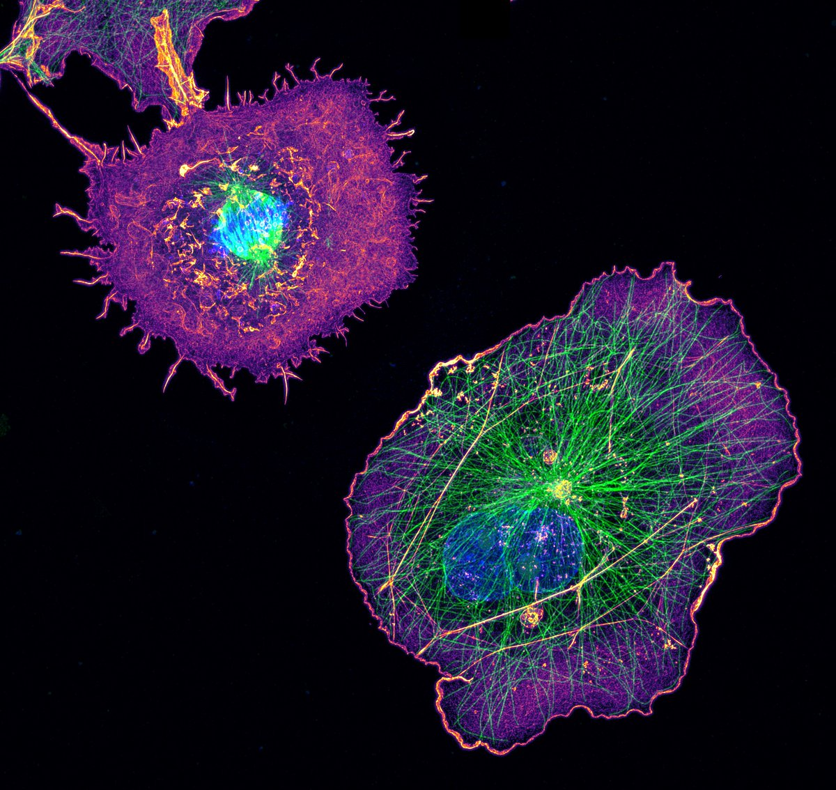 COS cells labeled for actin (purple), microtubules (green) and nucleus (blue)