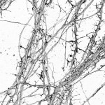 STORM image of actin in hippocampal neurons