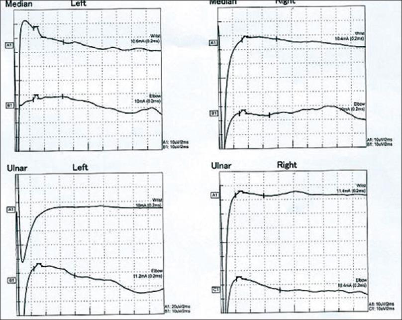Isolated acute bulbar palsy with anti-GM2 antibodies: A