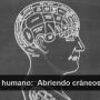 Desmembrando los secretos del cerebro humano:  Abriendo cráneos y mapeando funciones