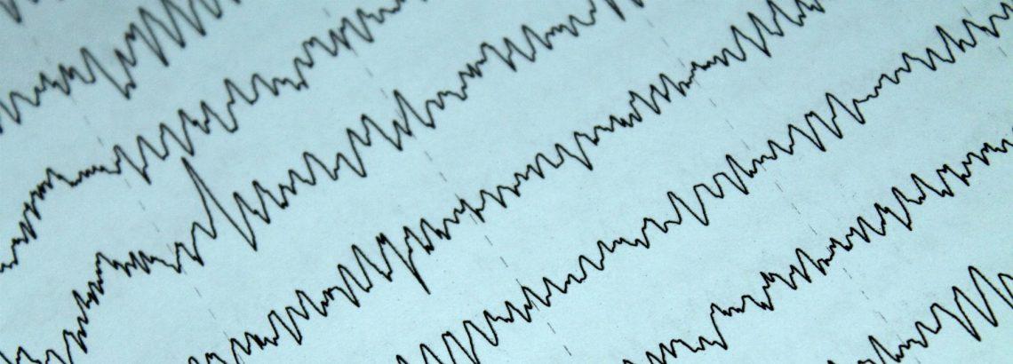 EEG - elektroencefalografia