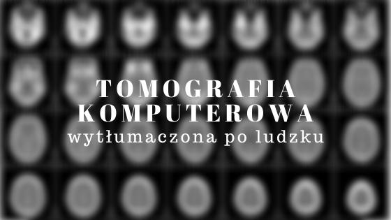 Ilustracja tytułowa: tomografia komputerowa wytłumaczona po ludzku