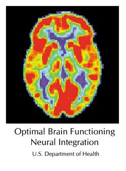 2015-08-10-1439240927-2696794-PET_Normal_braincopy.jpg