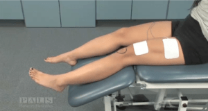 Best Electrode Position and Placement for Leg and Foot Stroke Rehabilitation  NeuroRehab
