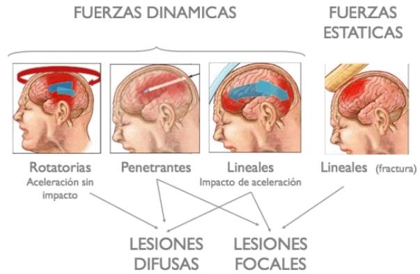 Tipos de lesiones de traumatismo craneoencefálico