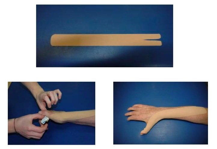 Vendaje de facilitación del extensor largo del pulgar
