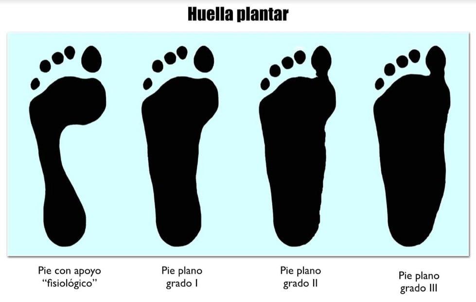 """Entendemos por """"pie plano"""" el que tiene una disminución de la altura del arco longitudinal plantar, también llamado bóveda planta"""