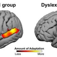 """""""خوانش پریشی"""" از کجا شروع می شود؟/اختلال مغز در تطابق به نور و صدا"""