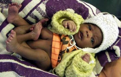 Zambia baby born with 4 legs in 2003.
