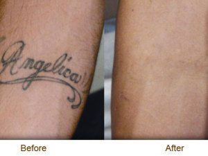 Laser Tattoo Removal 01