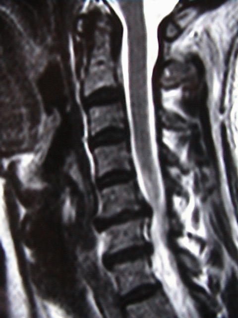 Neurosurgical Conditions - Neck Problems