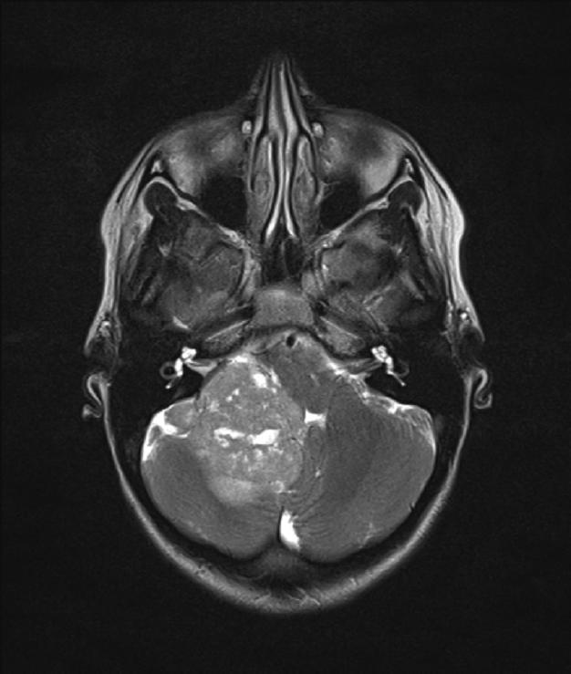 Tumor: Posterior Fossa Tumor