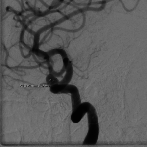 Cerebral aneurysm as viewed by a conventional catheter angiogram.