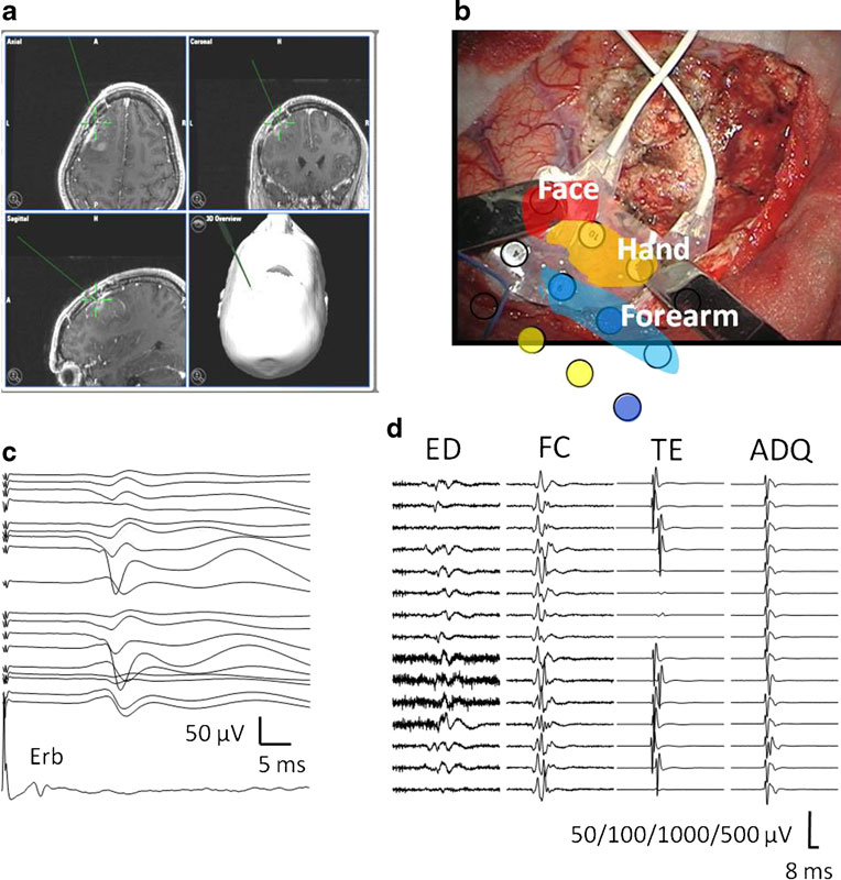 Role of intraoperative neurophysiological monitoring during