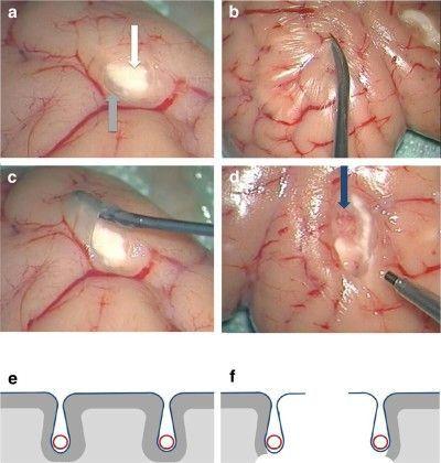 November   2015   Neurosurgery Blog