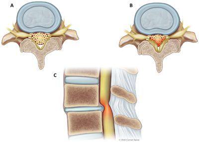 Spinal stenosis | Neurosurgery Blog