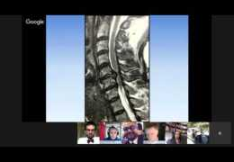 """Bernardo de Andrada MD, on """"Cervical Spine Disorders"""""""