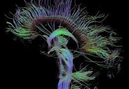 Recent Advances in Neuroimaging Techniques