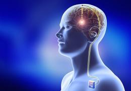 Introduction. Deep brain stimulation in 2018