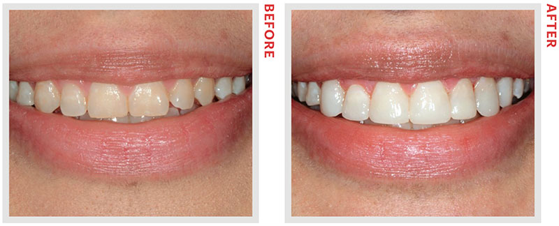 The Differences Between Veneers and Bonding You Probably ...