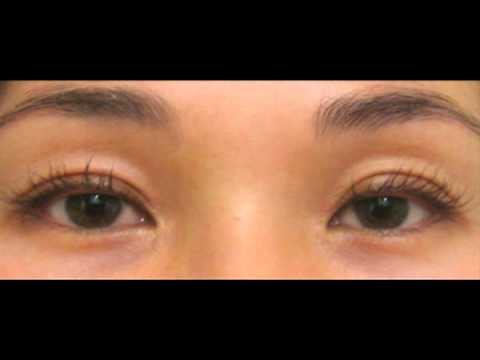 Dr. Fitzgerald – Watch Lashes Grow Before Your Eyes – Latisse At Dr. Rebecca Fitzgerald's Office featured image