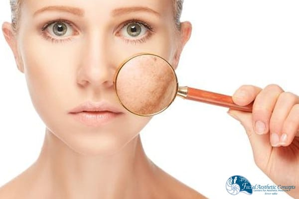 Are chemical peels safe - FAC