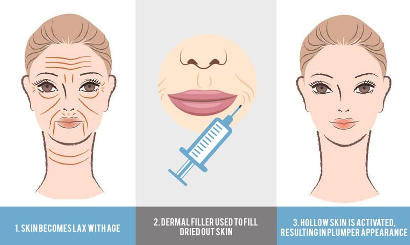 How do dermal fillers work Infographic