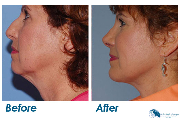 Facelift Before and After Cheeks and Jowels
