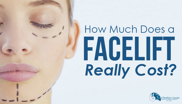 How much does a facelift really cost