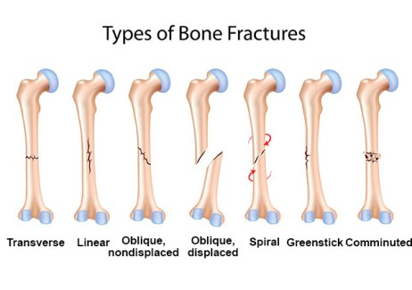Types of Bone FracturesInterActive Health