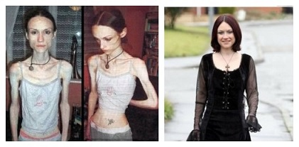 6 cases of anorexia