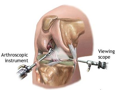 Tips for Arthroscopic Knee Surgery Recovery | New Health ...