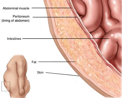 An Introduction to the 5 Layers of Abdominal Wall | New Health Advisor