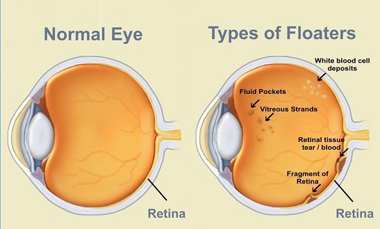 Floaters And Flashes Of Light In Eye