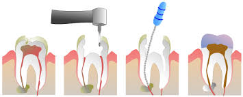 How Much does a Root Canal Cost? | New Health Guide
