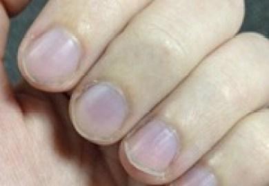 White Nails Symptom