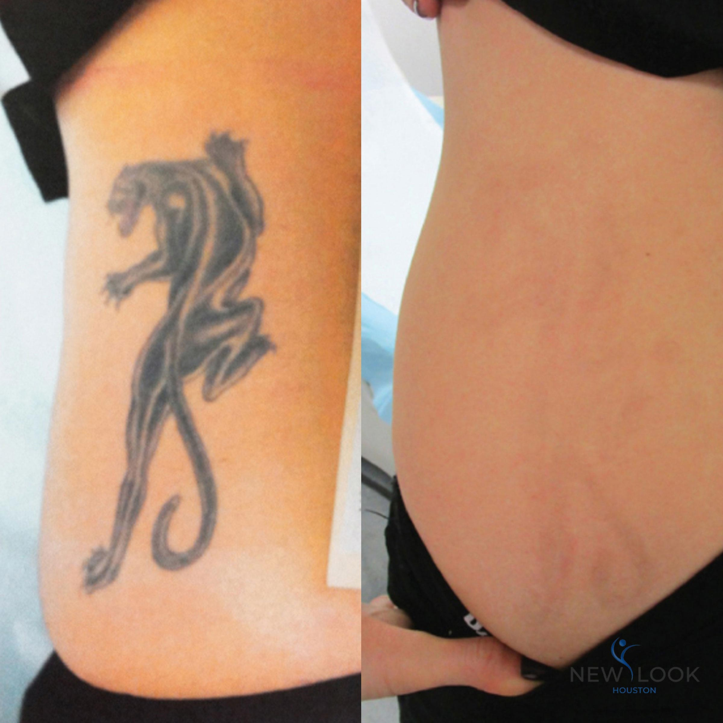 Big Color Tattoo Removal