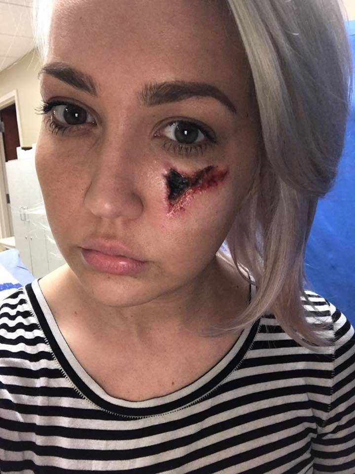 Cantante di The Voice morsa da un ragno le ha mangiato la carne del viso