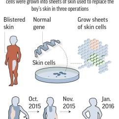 In Vivo Gene Therapy Diagram Skeleton Blank Boy With Rare Disease Gets Brand New Skin