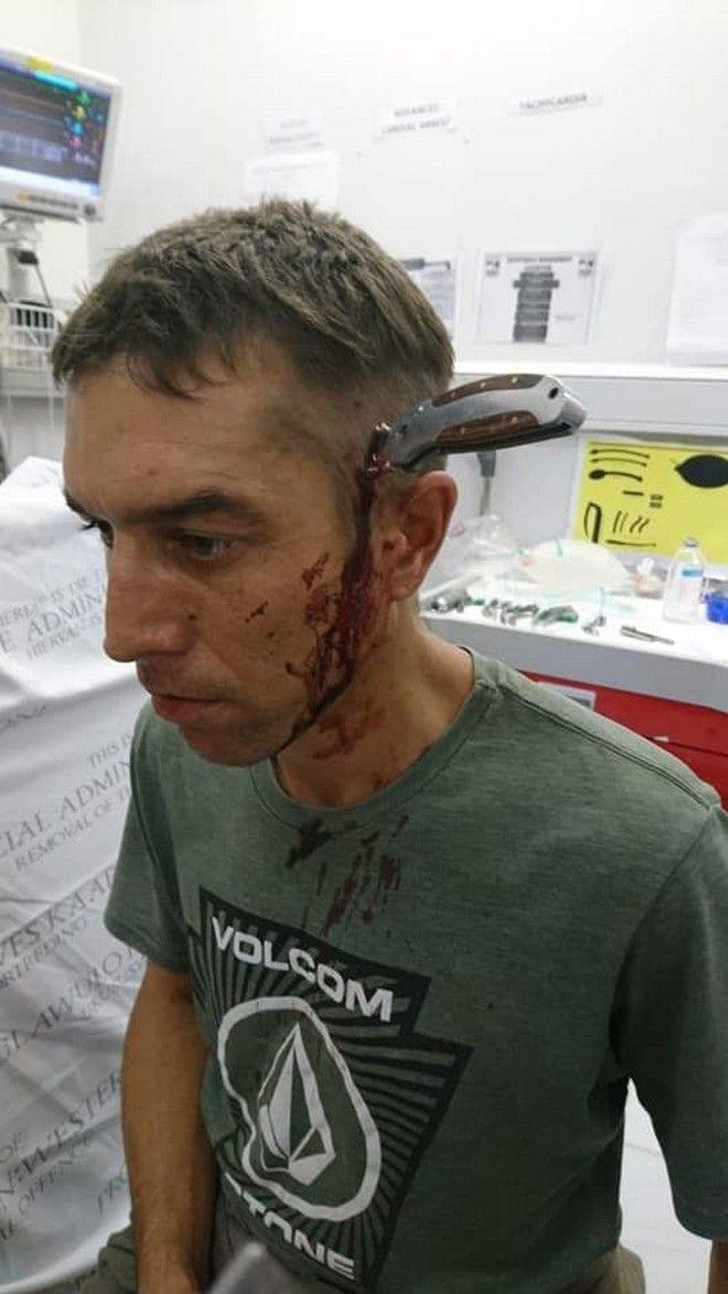 Ο 34χρονος στην κλινική όπου πήγε με το ποδήλατό του