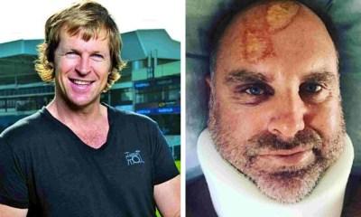 Matthew Hayden's Head Injury