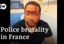 Macron: Images of French police beating a Black man 'shame us'   DW News
