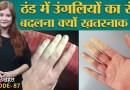 Winter में हाथ पैरों का रंग बदलना इस गंभीर बीमारी के लक्षण हैं | Raynaud's Disease | Sehat ep 87