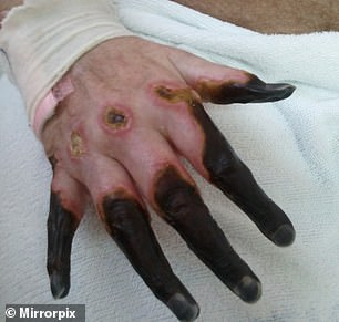 Finger turning black after cut