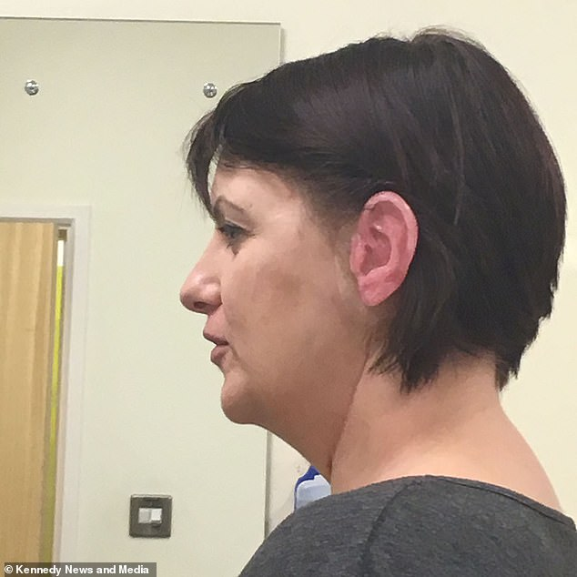 Mother, 43, who was told her skin cancer was just a wart